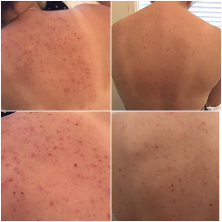 acne rygg behandling